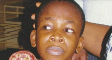 12 YRS OLD BOY ELECTROCUTED, LOSES ONE HAND