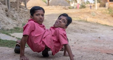 INDIAN CONJOINED TWINS SAY 'WE DON'T WISH TO GET SEPARATED'