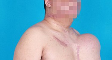CHINESE MAN WHOSE FACE WAS DISFIGURED AFTER ELECTROCUTION TO HAVE NEW ONE ON HIS CHEST