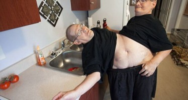 WORLD'S OLDEST CONJOINED TWINS CELEBRATE 63RD BIRTHDAY AT DISNEY WORLD