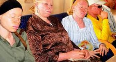 GOVT. BANS WITCHDOCTORS TO STOP KILLING OF ALBINOS FOR RITUAL