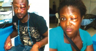 MAN BRUTALIZED BY POLICE ARRESTED FOR BUYING STOLEN GOODS