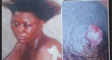 WOMAN BITES OFF, SWALLOWS NEIGHBOUR'S NIPPLE