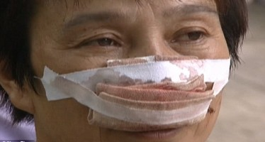 HUSBAND BITES WIFE'S NOSE OFF, EATS IT OVER PHONE CALL