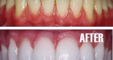 Video: Experts reveal  best way to whiten your teeth