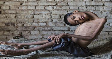 Boy whose head hung at 180-degree angle has life-changing surgery