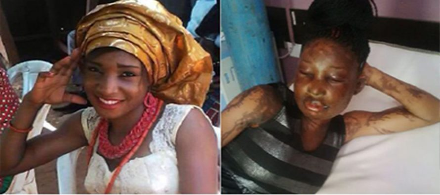 Housewife allegedly bathes rival with acid