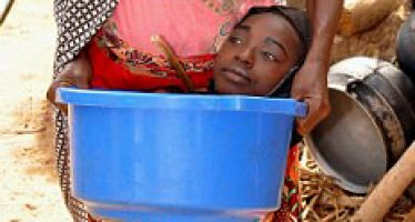 Meet Kano teenager who lives in a bowl