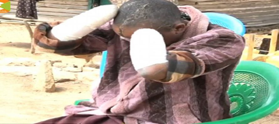 Man cuts off wife's arms for not getting pregnant