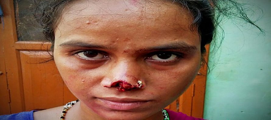 Man cuts off wife's nose, runs away with it over dowry