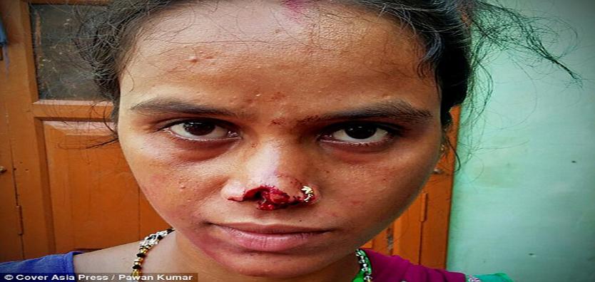 OrijoReporter.com, dowry in india