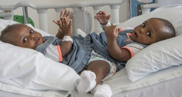 Nigerian conjoined twins separated