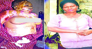Political thugs burn woman to death over LG chairmanship seat